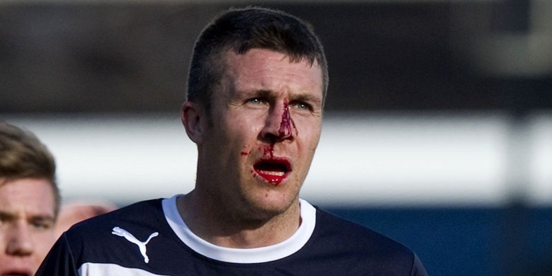 15/09/12 CLYDESDALE BANK PREMIER LEAGUE DUNDEE v MOTHERWELL (1-2)  DENS PARK - DUNDEE Dundee scorer Colin Nish picks up a nasty injury.