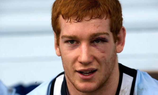 Scotland's Rob Harley sports a black eye during training