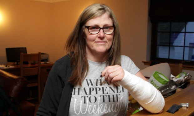Tracy McAllister suffered injuries to her arm after being bitten by a dog.