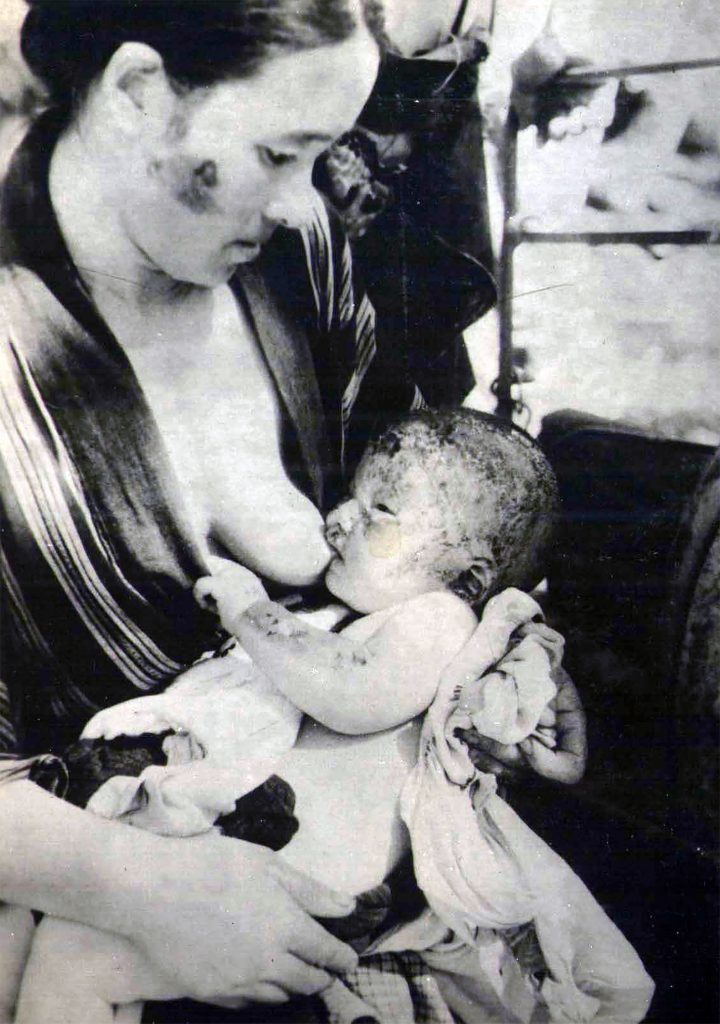 Victims of the American nuclear strike against Hiroshima in August 1945