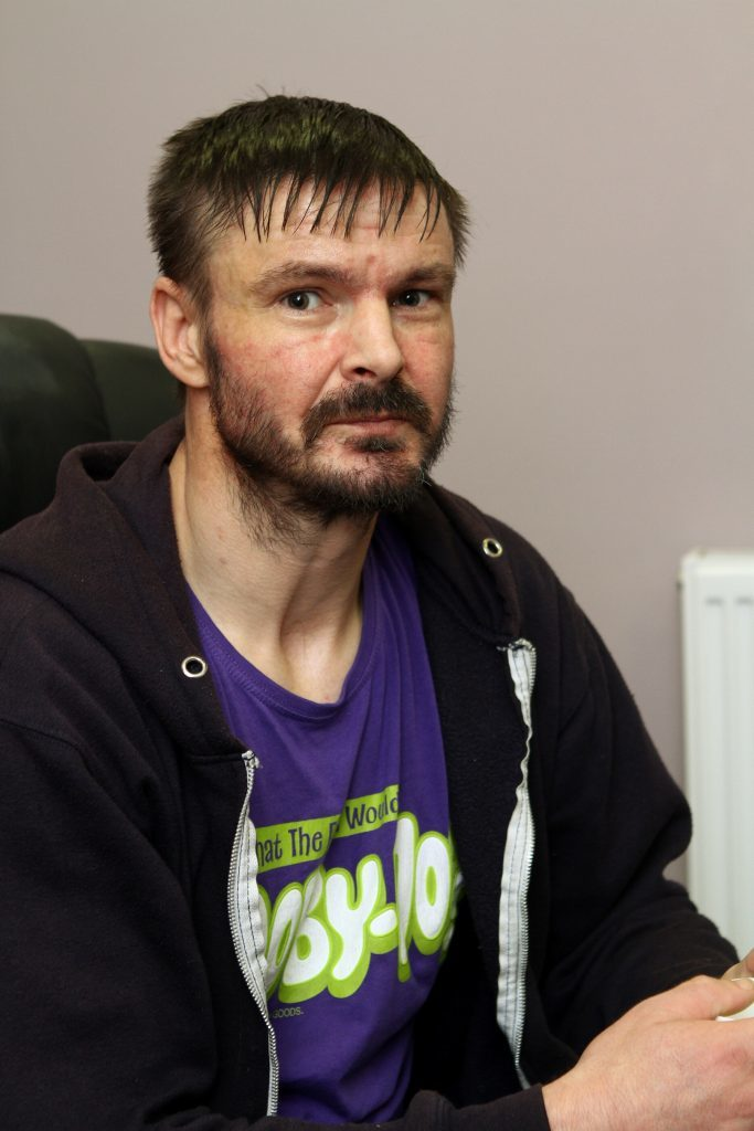 Service user John Ohren who had his leg amputated after a bad reaction to heroin in May