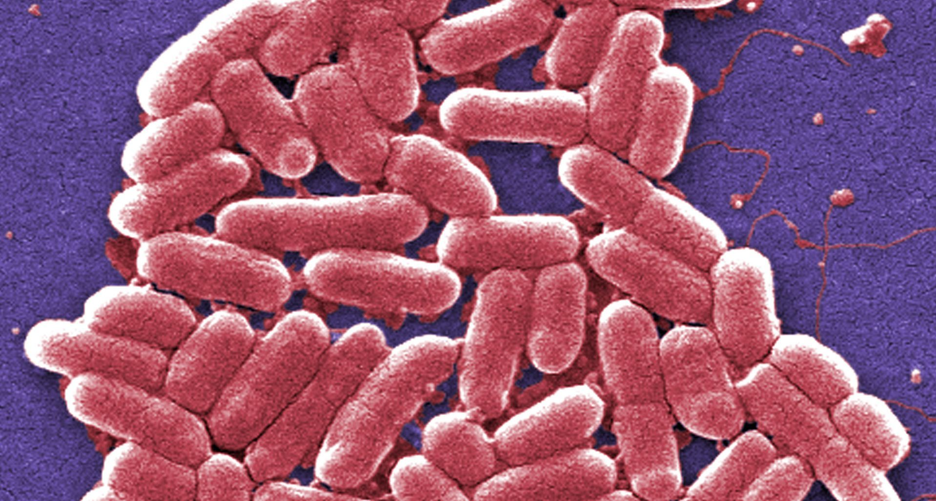 Potentially deadly E. coli 0157 case confirmed in Angus