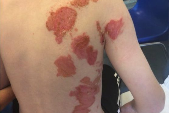 Ryan Griffin's back was badly burned in the incident and he may be scarred for life.