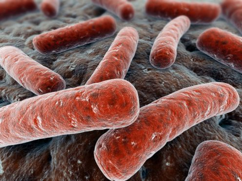 Mycobacterium tuberculosis, the bacteria which cause tuberculosis.