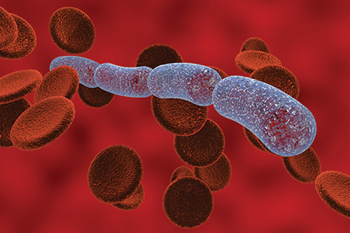Sepsis cases are on the rise.