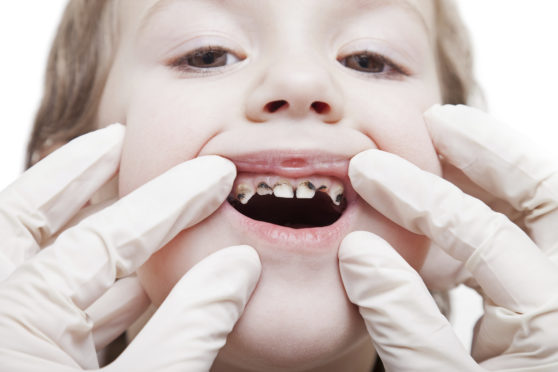 Dundee remains one of the worst places in Scotland in terms of childhood teeth decay