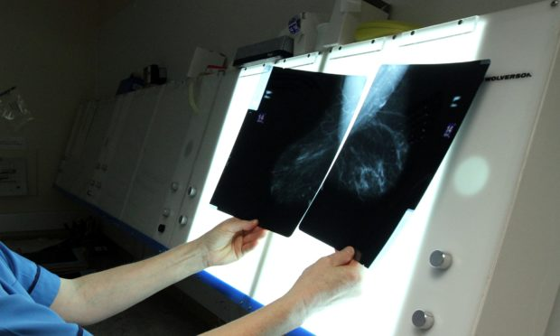Breast x-rays are checked for abnormalities.