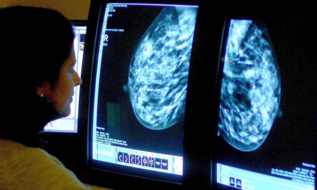 A consultant analysing a mammogram. (file pic)