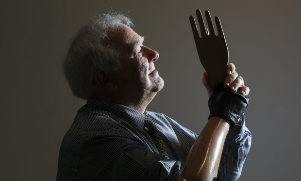 Exhibition to look at prosthetics - The Courier