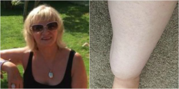 'My life has been taken away': Dundee woman pleas for help to treat leg condition lipoedema - The Courier